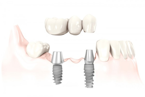 Multiple Teeth Implants
