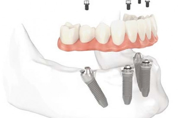 Full Set Dental Implants
