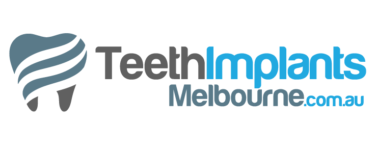 Teeth Implants Melbourne