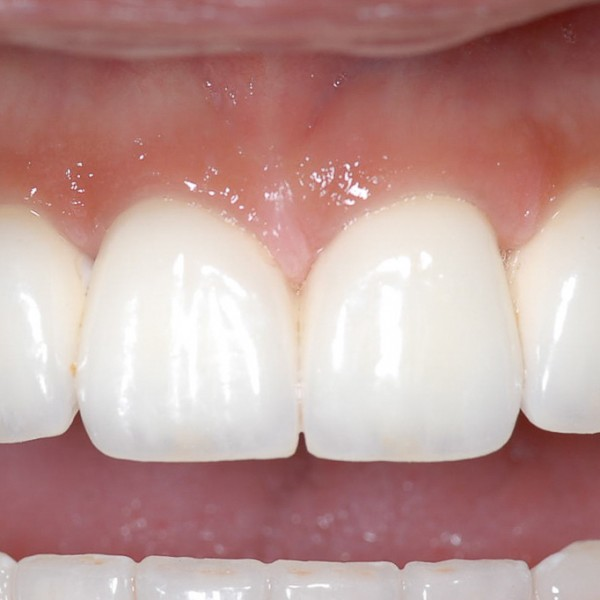 Multiple Teeth Implants Gallery