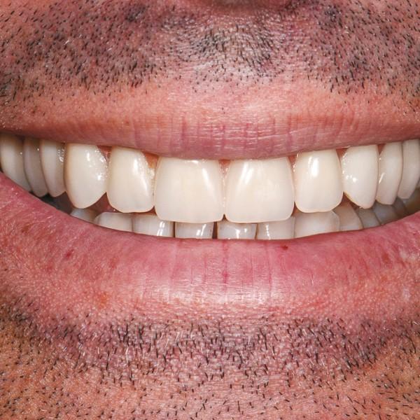 Full Set Dental Implants Gallery